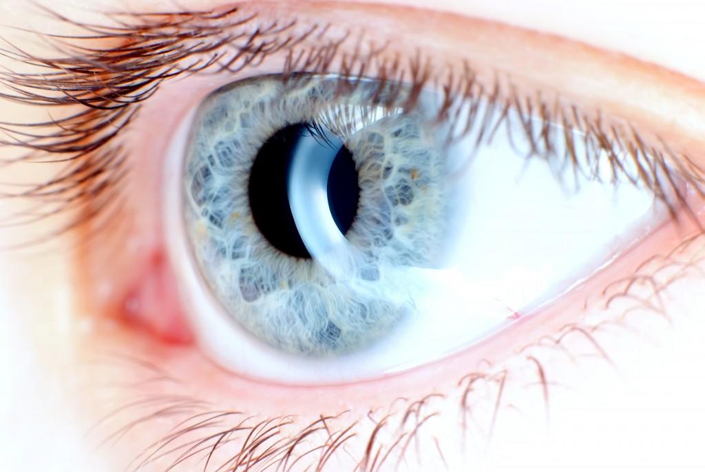 tratamientos oftalmológicos Anillos_corneales