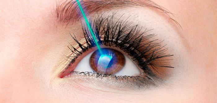Cirugía refractiva 1