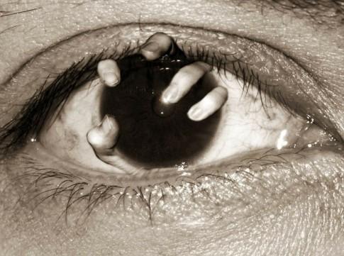 ceguera - oftalmólogs