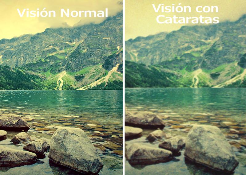 Así es cómo ven el mundo personas con enfermedades y discapacidades visuales